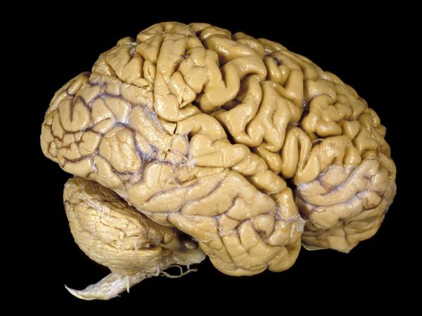 The human brain is constantly changing based on how we use it.